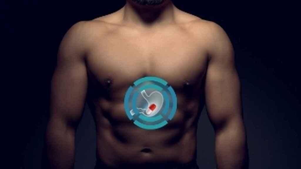 BodyCap Medical's E-Celsius pill