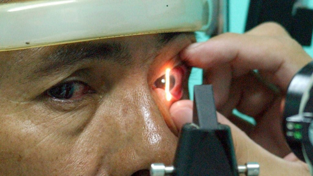 Scientists create a blind man for 40 years who partially regains his eyesight