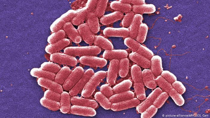 Micrograph of Escherichia coli.