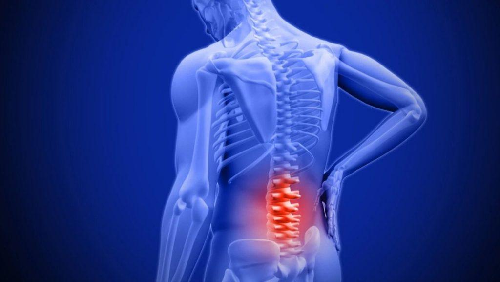 Crean un revolucionario dispositivo inflable que se inserta en la médula espinal para eliminar el dolor sin necesidad de cirugía